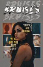 • Bruises • James Potter •  by emix_oxo