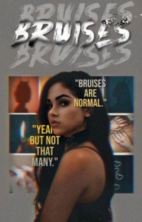 • Bruises • James Potter •  by nevillescourage