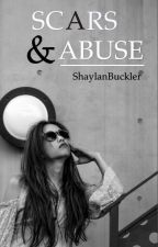 Scars & Abuse (magcon fanfic) by ShaylanBuckler