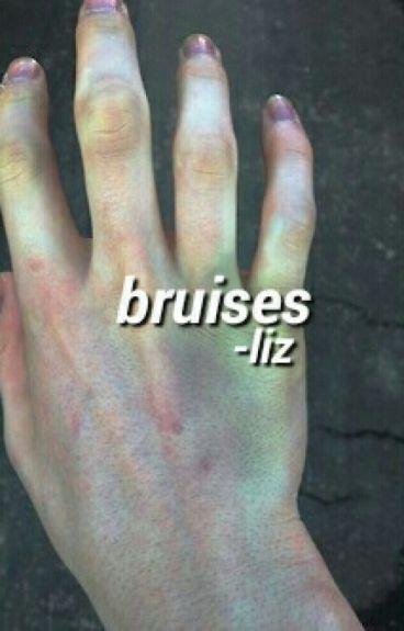 bruises ; lrh