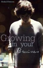 Growing in your bruises. [Larry stylinson] EN HIATUS by hiandsuddenlyyours