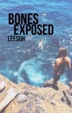Bones Exposed // Jake Foushee by leesuh