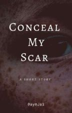 Conceal My Scar (A Short Story)  by aymJai