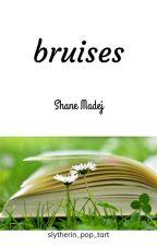 Bruises- Shane Madej by Slytherin_Pop_Tart