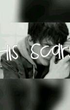 His scars (Ashton Irwin) by Sorryitslashton