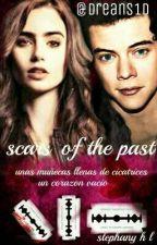 SCARS OF THE PAST  (H.S  )corrigiendo Errores.  by Dreans1D