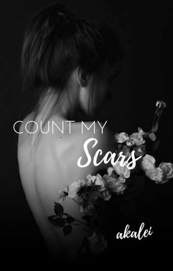 Count My Scars ➳ Teen Wolf [book 1]