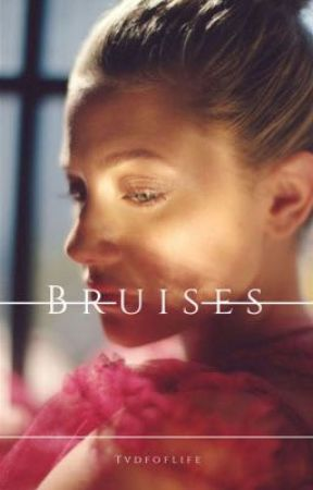 Bruises • The Vampire Diaries  by tvdfoflife