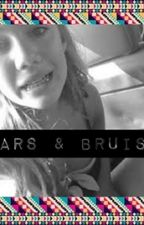 Scars And Bruises by EspinosaGriiier