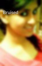 Bruised by devilznangelz23