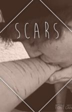 Scars by mbhayes