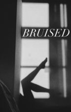 Bruised (Harry styles) by littleximperfection