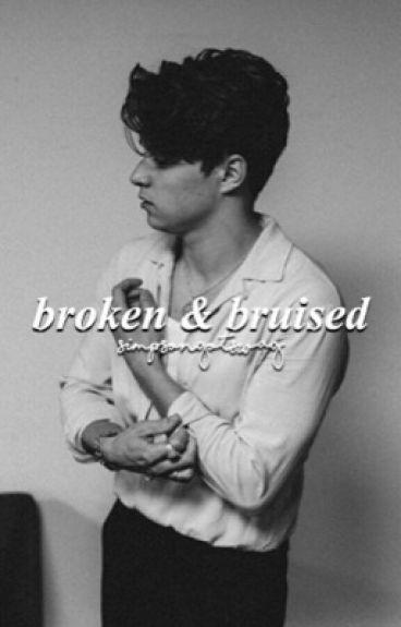 Broken and Bruised (#Wattys2016) UNDER EDITING