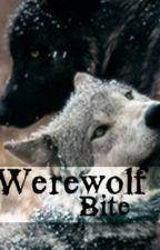 Werewolf Bite by Inspireme18