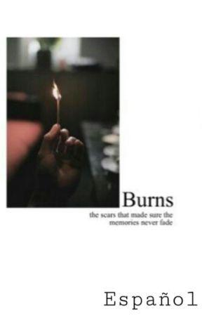 Burns   N.H by omglarryy