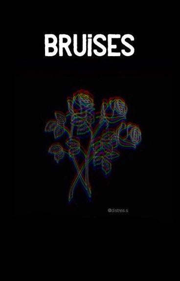Bruises // Lashton a.u. boyxboy