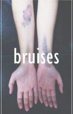 bruises //m.c by xpapertownsx