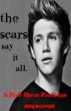 The Scars Say It All (A Niall Horan Fan-Fiction) by xxerinlovexx