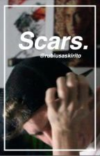 scars (elrubiusomg) book 2. by rubiusaskirito