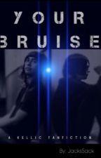Your Bruise [Kellic] by JacksSack