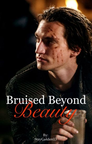 Bruised Beyond Beauty // John Murphy// The 100