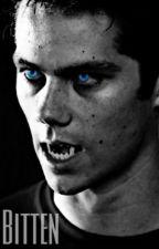 Teen Wolf: Bitten  by dylan-obrieno