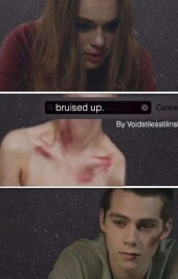 Bruised up | stydia au | teen wolf