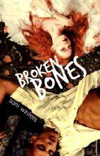 Broken Bones by WavingFlags