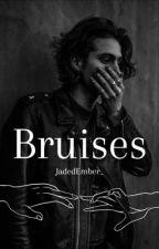 Bruises  l.h a.u by difficunt