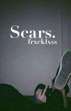 Scars. [ BORRADOR ] by frxcklxss
