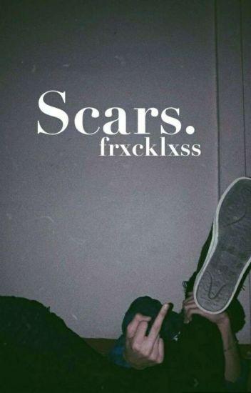 Scars. [PAUSADA TEMPORALMENTE]
