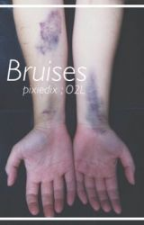 Bruises ; O2L by pixiedix