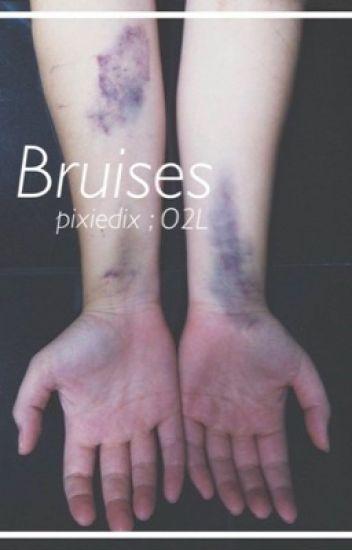 Bruises ; O2L