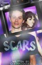 SCARS ×Dylan O'Brien× [en edición] by despota