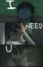 I NEED U by TypicallyMad