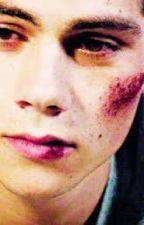 Bruises (Sterek/Teen Wolf FanFic) by TheMonsterInside23