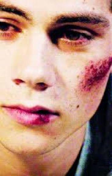 Bruises (Sterek/Teen Wolf FanFic)