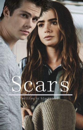 Scars || Dylan O'brien (slow updates)
