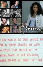 Bruises (an outsiders fanfiction)**on hold** by DawnOak2