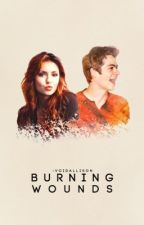 Burning Wounds ≫ Stilinski [2] {DISCONTINUED} by -voidallison