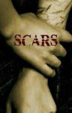 Scars Boyxboy by AlexJones24