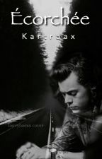 Écorchée (Harry Styles) by Kartraax
