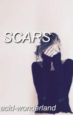 Scars • Scott McCall by acid-wonderland