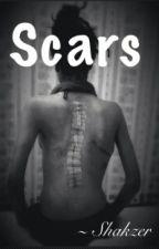 Scars by Shakzer