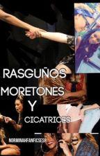 Raguños, moretones y cicatrices by norminahFanficsEsp