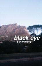 black eye :: luke brooks by pokemikeyy