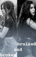 Bruised and Broken (Camren) by soulfulserendipity