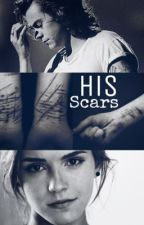 His Scars    H.S/E.W. by HarryESwriter