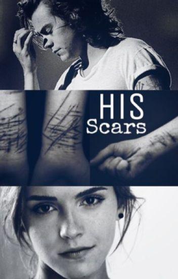 His Scars    H.S/E.W.