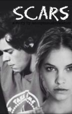 Scars (Harry Styles fanfiction) by anonymousloveletter